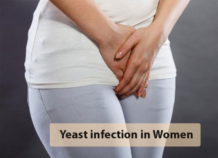 Vaginal Yeast Infection, Trend Health