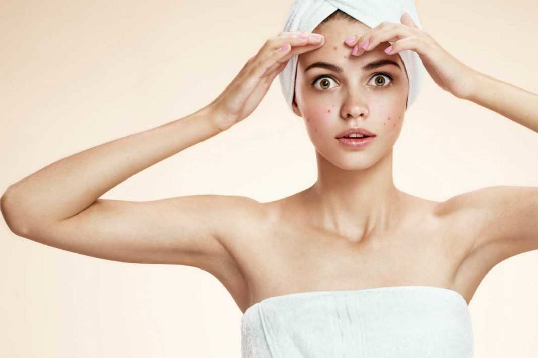 how to be confident with acne?,trend health