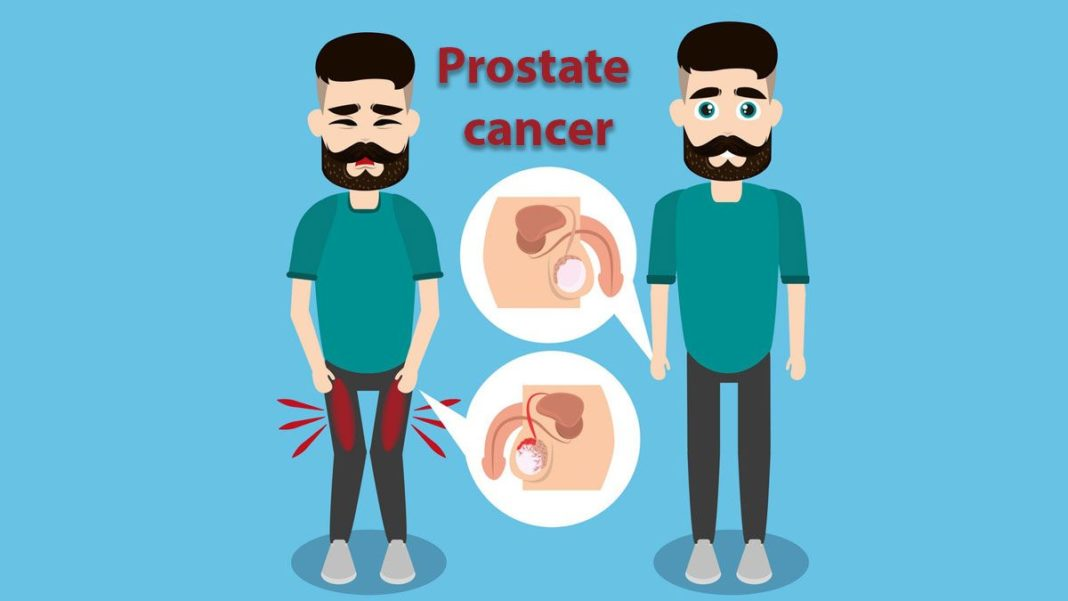 Prostate Cancer, Trend Health