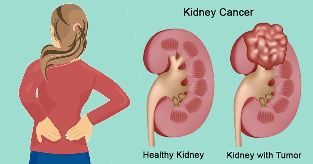 Kidney Cancer Symptoms, trend health