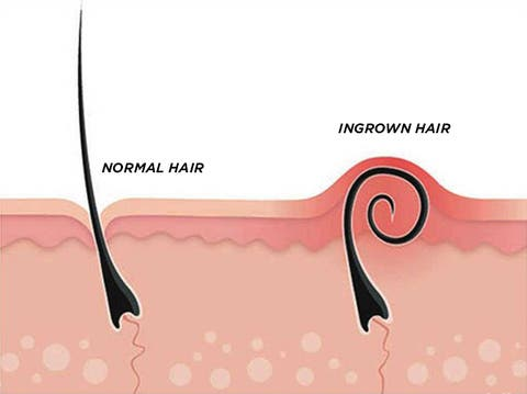 Ingrown Hairs, Trend Health