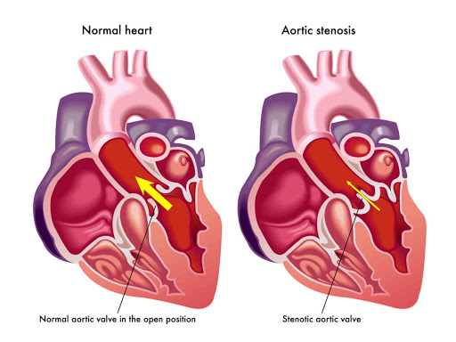 Aortic Valve Stenosis, Trend Health