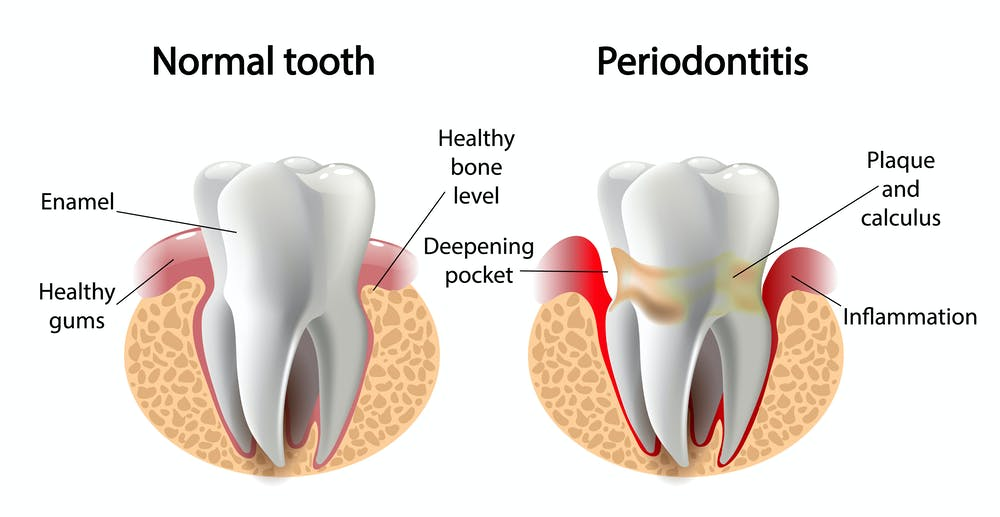 What is Periodontitis?, Trend Health