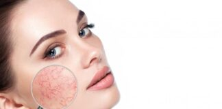 Know About Rosacea, Trend Health