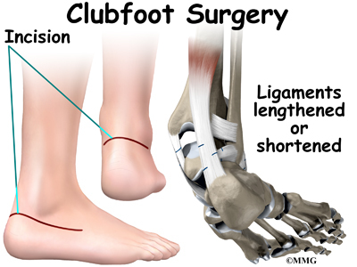 Diagnosis of Clubfoot